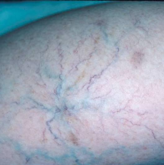 ce înseamnă venele albastre verzi dureri de coapsă chiar deasupra genunchiului